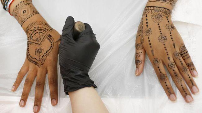 Tato Henna Buat Tangan Bocah 7 Tahun Melepuh Permanen